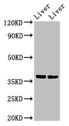 Positive Western Blot detected in Mouse liver tissue, Rat liver tissue. All lanes: CCNH antibody at 3 µg/ml Secondary Goat polyclonal to rabbit IgG at 1/50000 dilution. Predicted band size: 38 KDa. Observed band size: 38 KDa