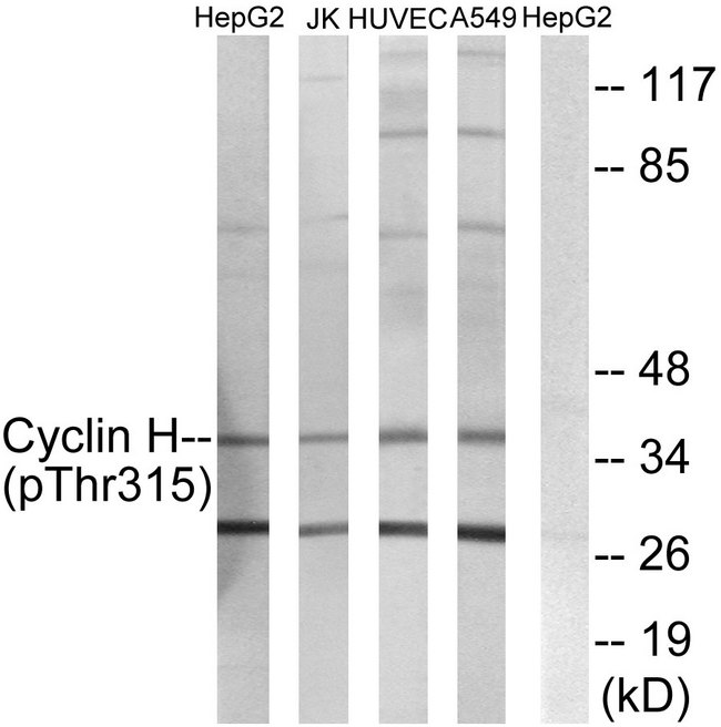Western blot analysis of lysates from HepG2 cells, Jurkat cells, HUVEC cells and A549 cells, using Cyclin H (Phospho-Thr315) Antibody. The lane on the right is blocked with the phospho peptide.