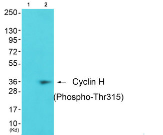Western blot of extracts from JK cells (Lane 2), using Cyclin H (Phospho-Thr315) Antibody. The lane on the left is treated with synthesized peptide.