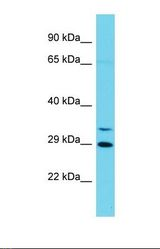 Western blot of Human Jurkat. CCNYL1 antibody dilution 1.0 ug/ml.  This image was taken for the unconjugated form of this product. Other forms have not been tested.