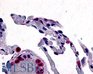 Anti-CCR1 antibody IHC of human lung. Immunohistochemistry of formalin-fixed, paraffin-embedded tissue after heat-induced antigen retrieval.