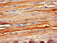 CCR10 / GPR2 Antibody - Immunohistochemistry of paraffin-embedded human skeletal muscle tissue at dilution of 1:100