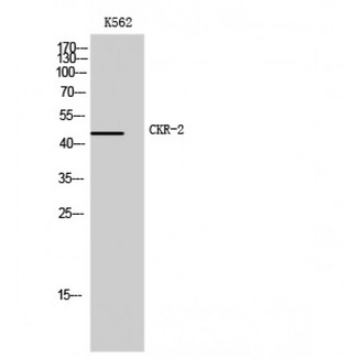 Western blot of CKR-2 antibody with K562 cell extracts