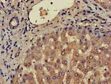 CCR3 Antibody - Immunohistochemistry of paraffin-embedded human liver tissue at dilution of 1:100