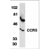 Western blot analysis of CCR5 in THP-1 whole cell lysate with CCR5 antibody at 1 µg/mL.