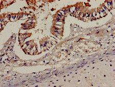 CCR7 Antibody - Immunohistochemistry analysis of human lung tissue at a dilution of 1:100