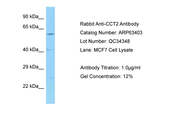CCT2 / CCT Beta Antibody -  This image was taken for the unconjugated form of this product. Other forms have not been tested.