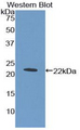 Western blot of recombinant CD110 / MPL.  This image was taken for the unconjugated form of this product. Other forms have not been tested.