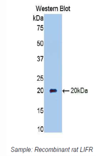 Western blot of recombinant CD118 / LIFR.  This image was taken for the unconjugated form of this product. Other forms have not been tested.