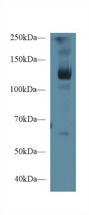 Western Blot; Sample: Porcine Skeletal muscle lysate; ;Primary Ab: 1µg/ml Rabbit Anti-Human LIFR Antibody;Second Ab: 0.2µg/mL HRP-Linked Caprine Anti-Rabbit IgG Polyclonal Antibody;