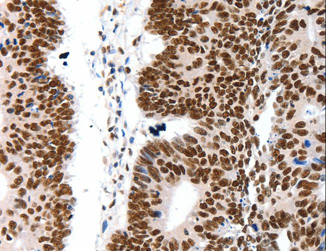 Immunohistochemistry of Human ovarian cancer using LIFR Polyclonal Antibody at dilution of 1:15.