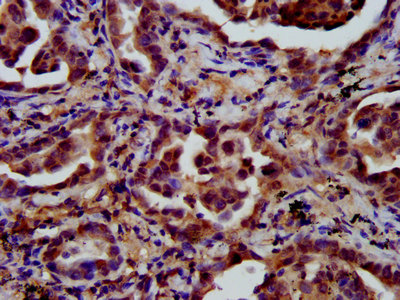 Immunohistochemistry image at a dilution of 1:600 and staining in paraffin-embedded human lung cancer performed on a Leica BondTM system. After dewaxing and hydration, antigen retrieval was mediated by high pressure in a citrate buffer (pH 6.0) . Section was blocked with 10% normal goat serum 30min at RT. Then primary antibody (1% BSA) was incubated at 4 °C overnight. The primary is detected by a biotinylated secondary antibody and visualized using an HRP conjugated SP system.
