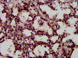 Immunohistochemistry image at a dilution of 1:600 and staining in paraffin-embedded human lung tissue performed on a Leica BondTM system. After dewaxing and hydration, antigen retrieval was mediated by high pressure in a citrate buffer (pH 6.0) . Section was blocked with 10% normal goat serum 30min at RT. Then primary antibody (1% BSA) was incubated at 4 °C overnight. The primary is detected by a biotinylated secondary antibody and visualized using an HRP conjugated SP system.
