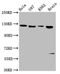 Positive Western Blot detected in Hela whole cell lysate, U87 whole cell lysate, K562 whole cell lysate, Rat brain tissue. All lanes: LIFR antibody at 3.4 µg/ml Secondary Goat polyclonal to rabbit IgG at 1/50000 dilution. Predicted band size: 124 KDa. Observed band size: 124 KDa