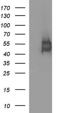 HEK293T cells were transfected with the pCMV6-ENTRY control (Left lane) or pCMV6-ENTRY IL1R2 (Right lane) cDNA for 48 hrs and lysed. Equivalent amounts of cell lysates (5 ug per lane) were separated by SDS-PAGE and immunoblotted with anti-IL1R2.