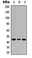 Western blot analysis of IL-1R2 expression in HEK293T (A); Raw264.7 (B); PC12 (C) whole cell lysates.