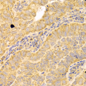 Immunohistochemistry of paraffin-embedded human endometrial cancer tissue.