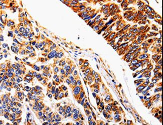 Immunohistochemistry of Human lung cancer using IL1R2 Polyclonal Antibody at dilution of 1:20.