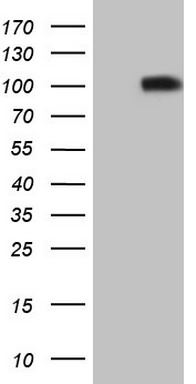 HEK293T cells were transfected with the pCMV6-ENTRY control (Left lane) or pCMV6-ENTRY FLT3 (Right lane) cDNA for 48 hrs and lysed. Equivalent amounts of cell lysates (5 ug per lane) were separated by SDS-PAGE and immunoblotted with anti-FLT3 (1:500).