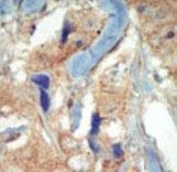CD135 / FLT3 Antibody - Formalin-fixed and paraffin-embedded human cancer tissue reacted with the primary antibody, which was peroxidase-conjugated to the secondary antibody, followed by DAB staining. This data demonstrates the use of this antibody for immunohistochemistry; clinical relevance has not been evaluated. BC = breast carcinoma; HC = hepatocarcinoma.