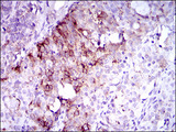 IHC of paraffin-embedded cervical cancer tissues using FLT3 mouse monoclonal antibody with DAB staining.