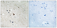 Immunohistochemistry analysis of paraffin-embedded human brain, using FLT3 (Phospho-Tyr969) Antibody. The picture on the right is blocked with the phospho peptide.