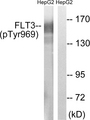 Western blot analysis of lysates from HepG2 cells treated with Na3VO4 0.3mM 40', using FLT3 (Phospho-Tyr969) Antibody. The lane on the right is blocked with the phospho peptide.