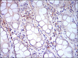 IHC of paraffin-embedded colon tissues using CD14 mouse monoclonal antibody with DAB staining.