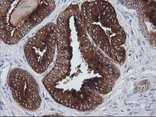 CD1C Antibody - IHC of paraffin-embedded Human prostate tissue using anti-CD1C mouse monoclonal antibody. (Heat-induced epitope retrieval by 10mM citric buffer, pH6.0, 100C for 10min).