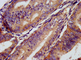 Immunohistochemistry image at a dilution of 1:300 and staining in paraffin-embedded human endometrial cancer performed on a Leica BondTM system. After dewaxing and hydration, antigen retrieval was mediated by high pressure in a citrate buffer (pH 6.0) . Section was blocked with 10% normal goat serum 30min at RT. Then primary antibody (1% BSA) was incubated at 4 °C overnight. The primary is detected by a biotinylated secondary antibody and visualized using an HRP conjugated SP system.