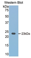 CD2 Antibody - Western Blot; Sample: Recombinant protein.
