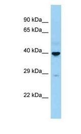 CD207 / Langerin Antibody - CD207 / LANGERIN antibody Western Blot of Fetal Kidney . Antibody dilution: 1 ug/ml.  This image was taken for the unconjugated form of this product. Other forms have not been tested.