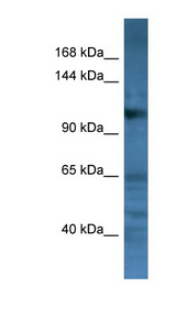 CD22 antibody LS-C135641 Western blot of Fetal Brain lysate.  This image was taken for the unconjugated form of this product. Other forms have not been tested.