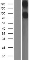 CD22 Protein - Western validation with an anti-DDK antibody * L: Control HEK293 lysate R: Over-expression lysate