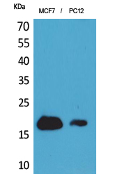CD225 / IFITM1 Antibody - Western Blot analysis of extracts from MCF7, PC12 cells using IFITM1 Antibody.