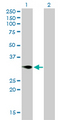 Western Blot analysis of TNFRSF7 expression in transfected 293T cell line by TNFRSF7 monoclonal antibody (M01), clone 1E2-A3.Lane 1: TNFRSF7 transfected lysate(29.2 KDa).Lane 2: Non-transfected lysate.