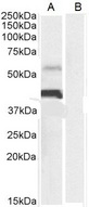 CD274 / B7-H1 / PD-L1 antibody (0.3µg/ml) staining of Human Heart (A) lysate + Blocking peptide (B) (35µg protein in RIPA buffer). Detected by chemiluminescence.