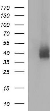 HEK293T cells were transfected with the pCMV6-ENTRY control (Left lane) or pCMV6-ENTRY CD274 (Right lane) cDNA for 48 hrs and lysed. Equivalent amounts of cell lysates (5 ug per lane) were separated by SDS-PAGE and immunoblotted with anti-CD274.