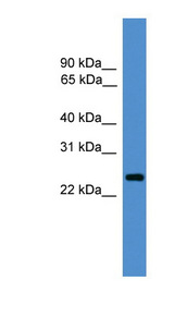 CD28 antibody LS-C117042 Western blot of Fetal Brain lysate.  This image was taken for the unconjugated form of this product. Other forms have not been tested.