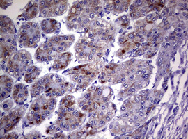 IHC of paraffin-embedded Carcinoma of Human liver tissue using anti-TNFRSF8 mouse monoclonal antibody. (Heat-induced epitope retrieval by 10mM citric buffer, pH6.0, 120°C for 3min).