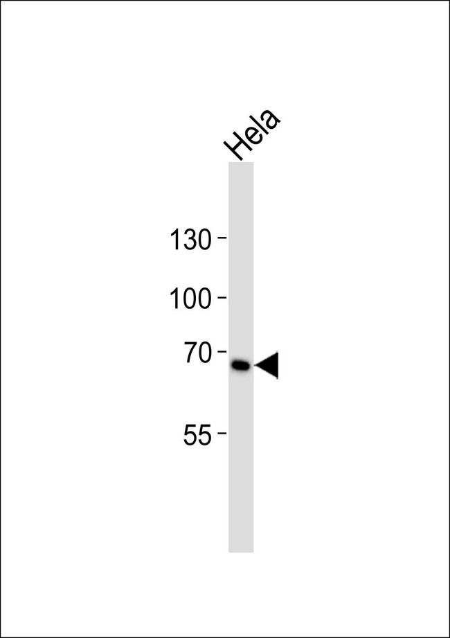 Western blot of lysate from HeLa cell line with TNFRSF8 Antibody. Antibody was diluted at 1:1000. A goat anti-rabbit IgG H&L (HRP) at 1:10000 dilution was used as the secondary antibody. Lysate at 35 ug.