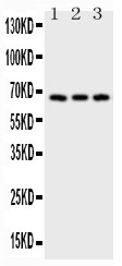 CD30 antibody Western blot.jpg. All lanes: Anti-CD30 at 0.5 ug/ml. Lane 1: HELA Whole Cell Lysate at 40 ug. Lane 2: 293T Whole Cell Lysate at 40 ug. Lane 3: JURKAT Whole Cell Lysate at 40 ug. Predicted band size: 67 kD. Observed band size: 67 kD.
