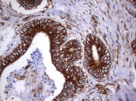 IHC of paraffin-embedded Adenocarcinoma of Human colon tissue using anti-TNFRSF8 mouse monoclonal antibody.