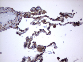 IHC of paraffin-embedded Human lung tissue using anti-TNFRSF8 mouse monoclonal antibody.