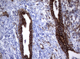 IHC of paraffin-embedded Human endometrium tissue using anti-TNFRSF8 mouse monoclonal antibody.