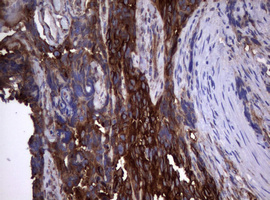 IHC of paraffin-embedded Adenocarcinoma of Human endometrium tissue using anti-TNFRSF8 mouse monoclonal antibody.