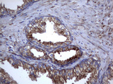 IHC of paraffin-embedded Human prostate tissue using anti-TNFRSF8 mouse monoclonal antibody.