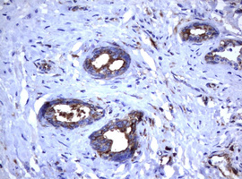 IHC of paraffin-embedded Carcinoma of Human prostate tissue using anti-TNFRSF8 mouse monoclonal antibody.