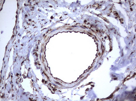 IHC of paraffin-embedded Human lymph node tissue using anti-TNFRSF8 mouse monoclonal antibody.
