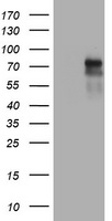 HEK293T cells were transfected with the pCMV6-ENTRY control (Left lane) or pCMV6-ENTRY TNFRSF8 (Right lane) cDNA for 48 hrs and lysed. Equivalent amounts of cell lysates (5 ug per lane) were separated by SDS-PAGE and immunoblotted with anti-TNFRSF8.